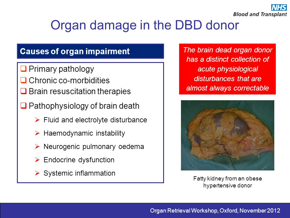 Organ damage in the DBD donor