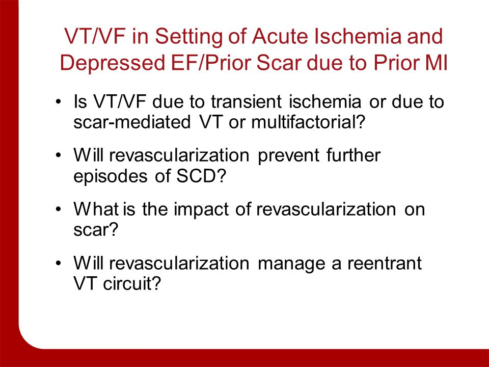 VT/VF in Setting of Acute Ischemia and Depressed EF/Prior Scar due to Prior MI