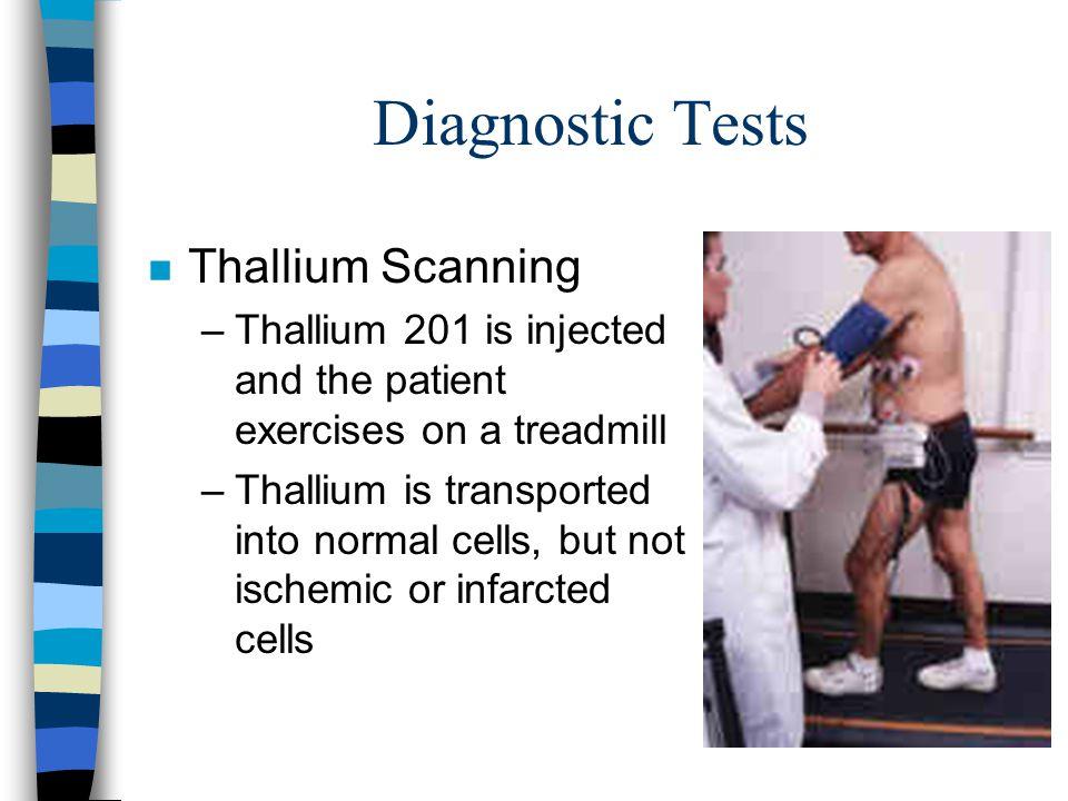 Diagnostic Tests Thallium Scanning