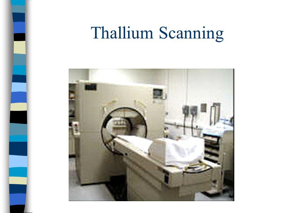 Thallium Scanning