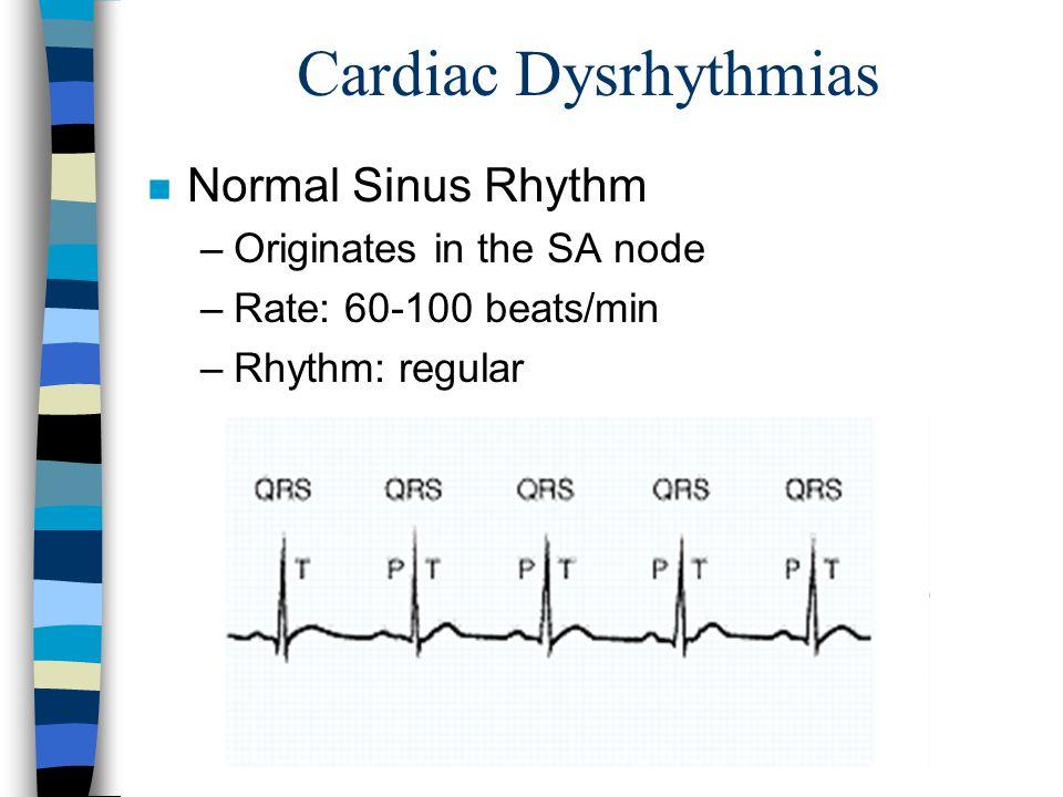 Cardiac Dysrhythmias Normal Sinus Rhythm Originates in the SA node