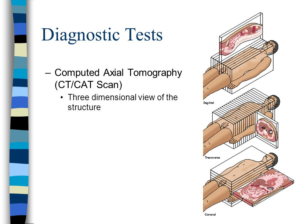 Diagnostic Tests Computed Axial Tomography (CT/CAT Scan)