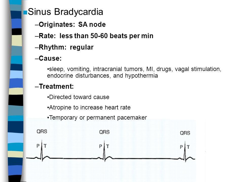 Sinus Bradycardia Originates: SA node