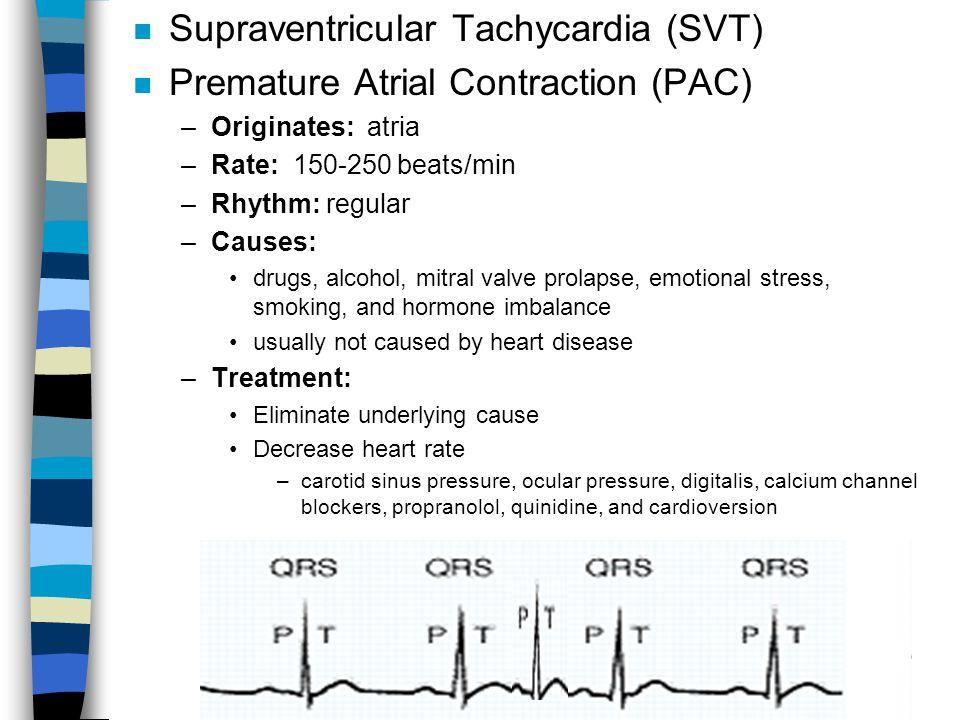 Supraventricular Tachycardia (SVT) Premature Atrial Contraction (PAC)