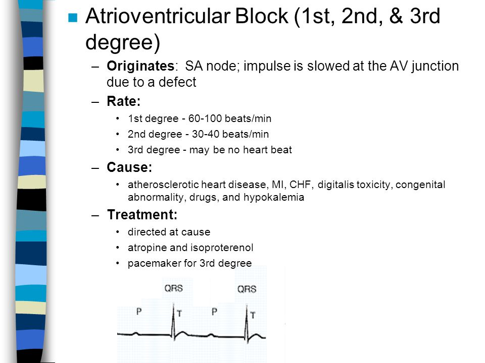 Atrioventricular Block (1st, 2nd, & 3rd degree)