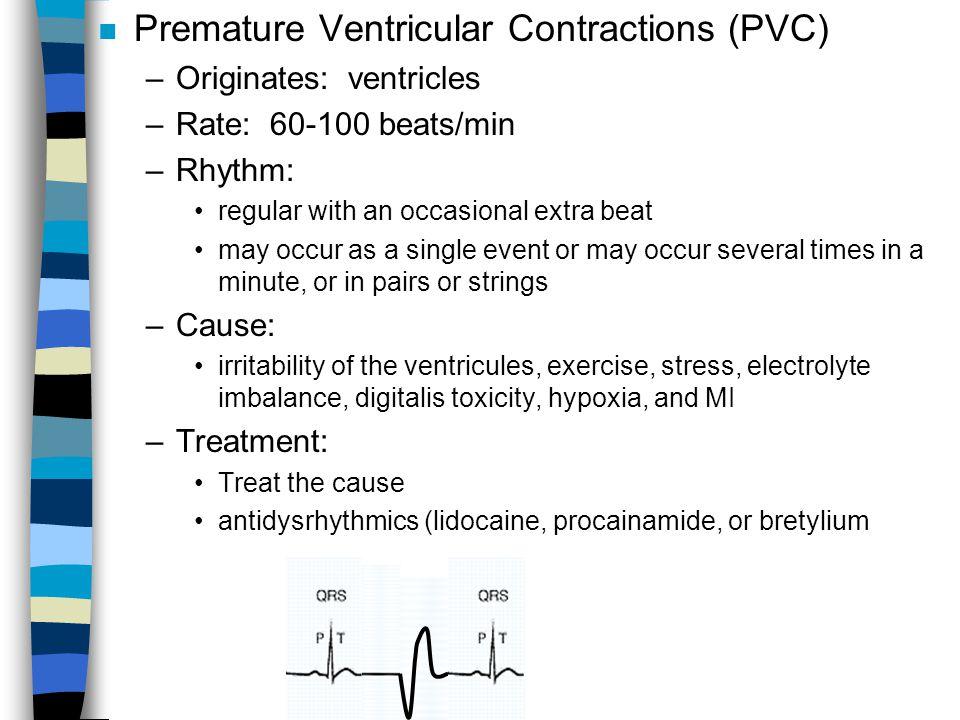 Premature Ventricular Contractions (PVC)