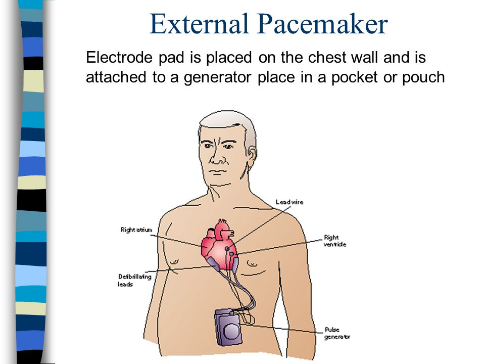 External Pacemaker Electrode pad is placed on the chest wall and is attached to a generator place in a pocket or pouch.