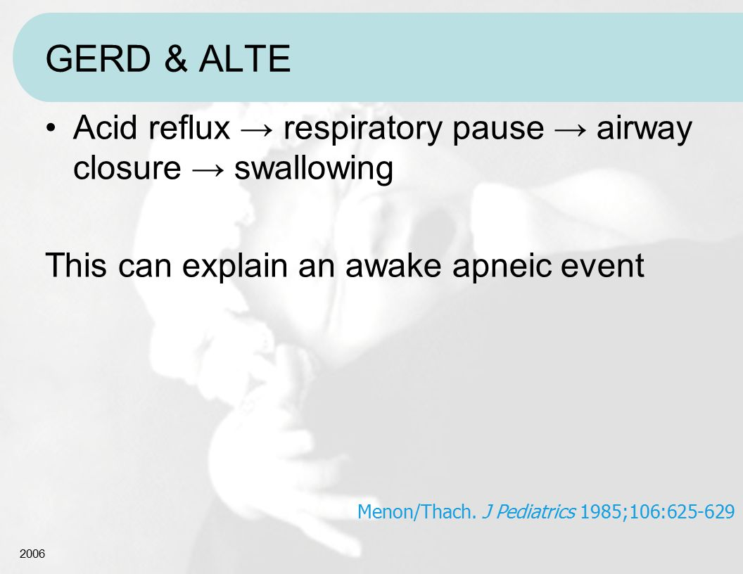 GERD & ALTE Acid reflux → respiratory pause → airway closure → swallowing. This can explain an awake apneic event.