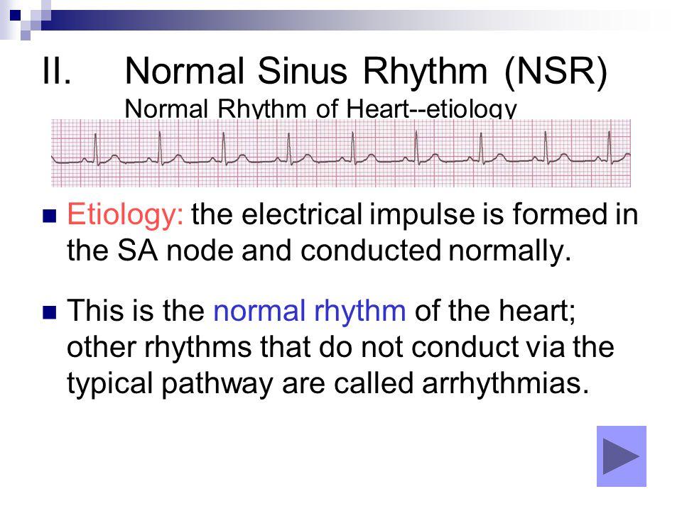 Normal Sinus Rhythm (NSR) Normal Rhythm of Heart--etiology