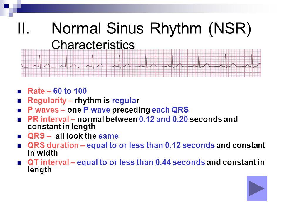 Normal Sinus Rhythm (NSR) Characteristics