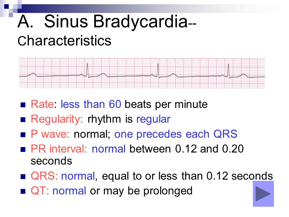 A. Sinus Bradycardia-- Characteristics