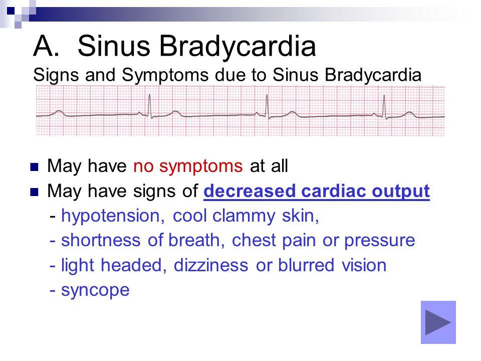 A. Sinus Bradycardia Signs and Symptoms due to Sinus Bradycardia