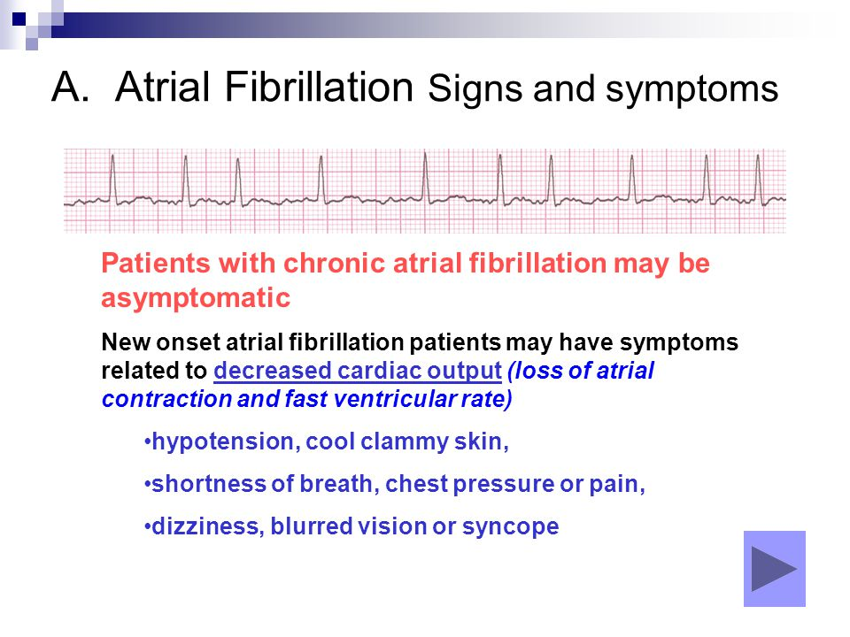 A. Atrial Fibrillation Signs and symptoms