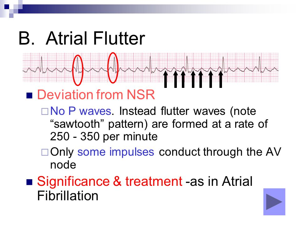 B. Atrial Flutter Deviation from NSR
