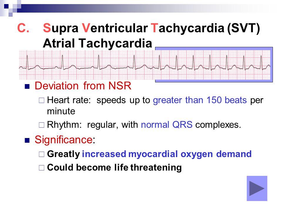 Supra Ventricular Tachycardia (SVT) Atrial Tachycardia
