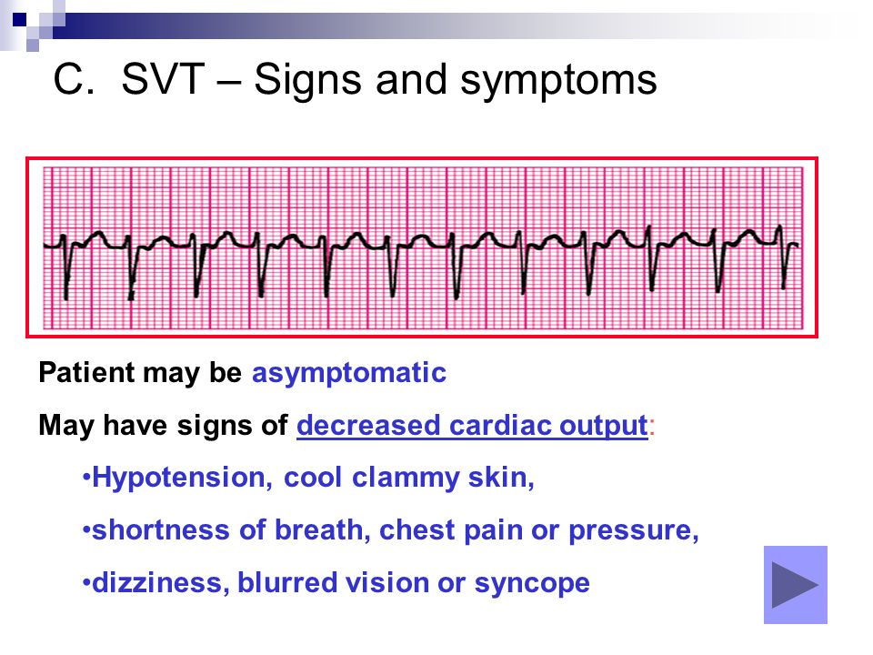 C. SVT – Signs and symptoms