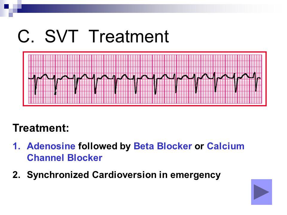 C. SVT Treatment Treatment: