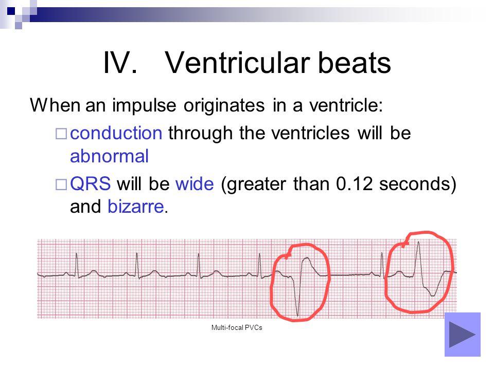 IV. Ventricular beats When an impulse originates in a ventricle:
