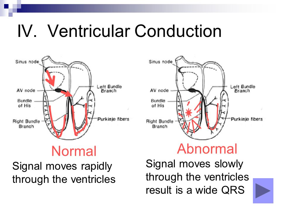 IV. Ventricular Conduction