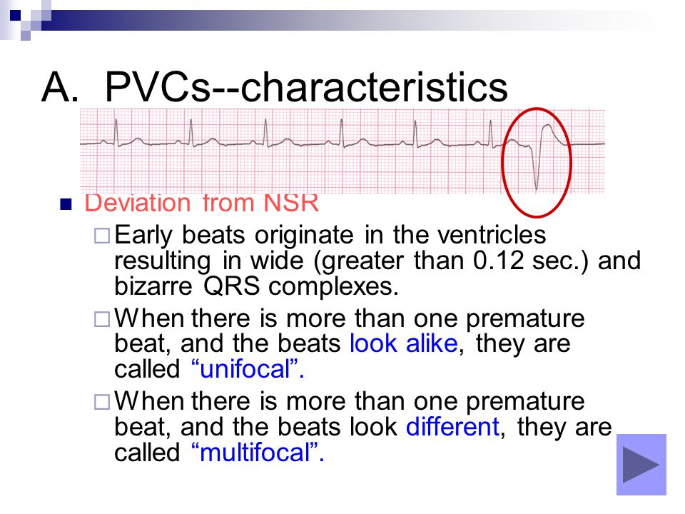 A. PVCs--characteristics