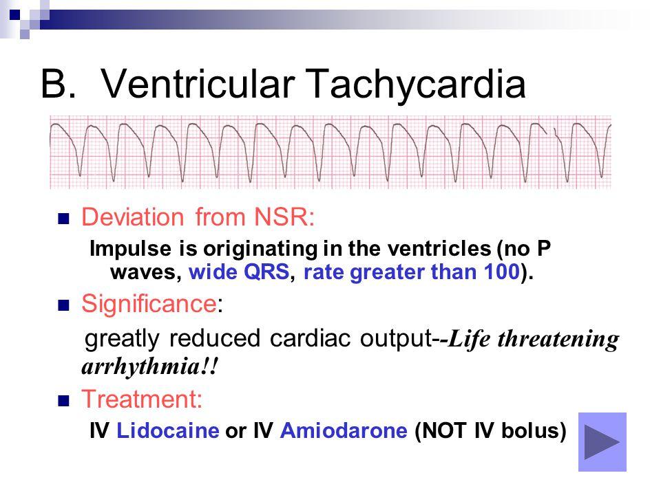 B. Ventricular Tachycardia