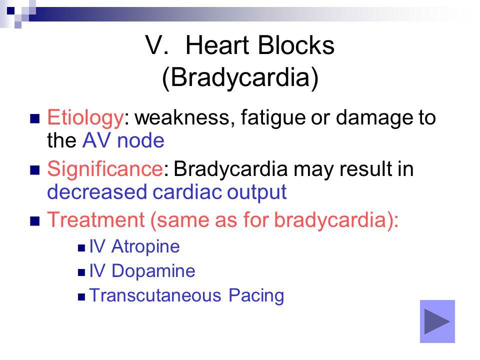 V. Heart Blocks (Bradycardia)