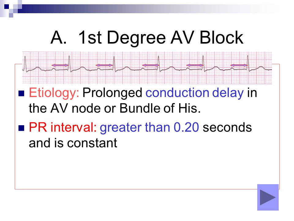 A. 1st Degree AV Block Etiology: Prolonged conduction delay in the AV node or Bundle of His.