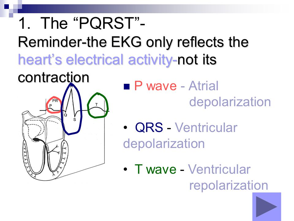 1. The PQRST - Reminder-the EKG only reflects the heart's electrical activity-not its contraction