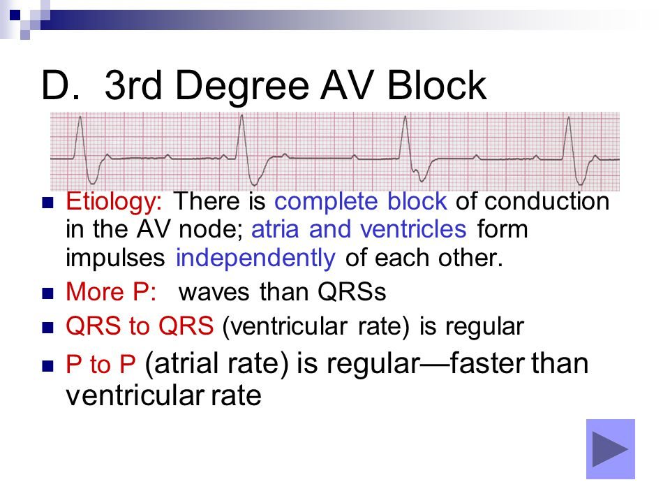 D. 3rd Degree AV Block