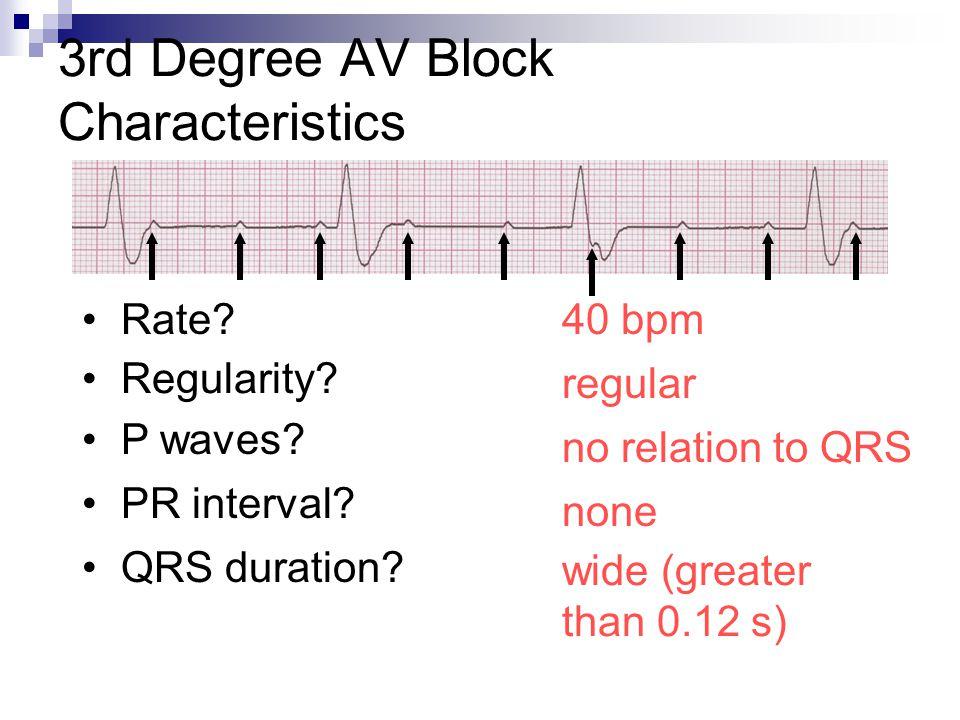 3rd Degree AV Block Characteristics