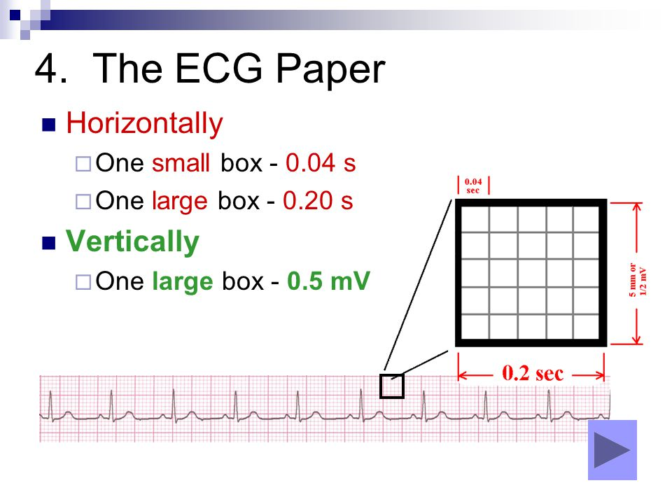 4. The ECG Paper Horizontally Vertically One small box - 0.04 s