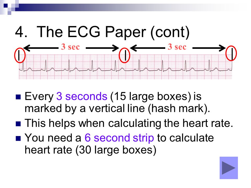 4. The ECG Paper (cont) 3 sec. 3 sec. Every 3 seconds (15 large boxes) is marked by a vertical line (hash mark).