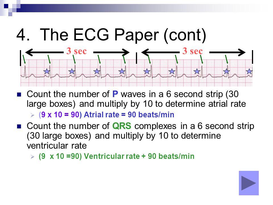 4. The ECG Paper (cont) 3 sec 3 sec
