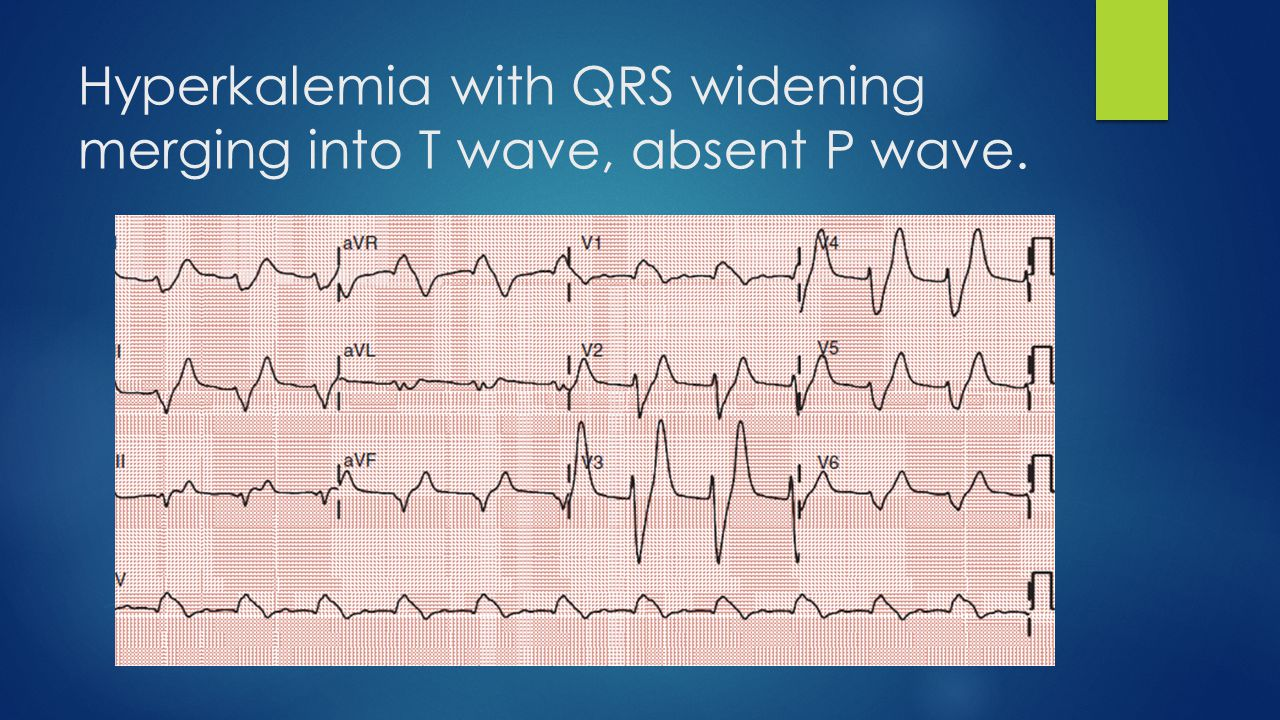 Hyperkalemia with QRS widening merging into T wave, absent P wave.