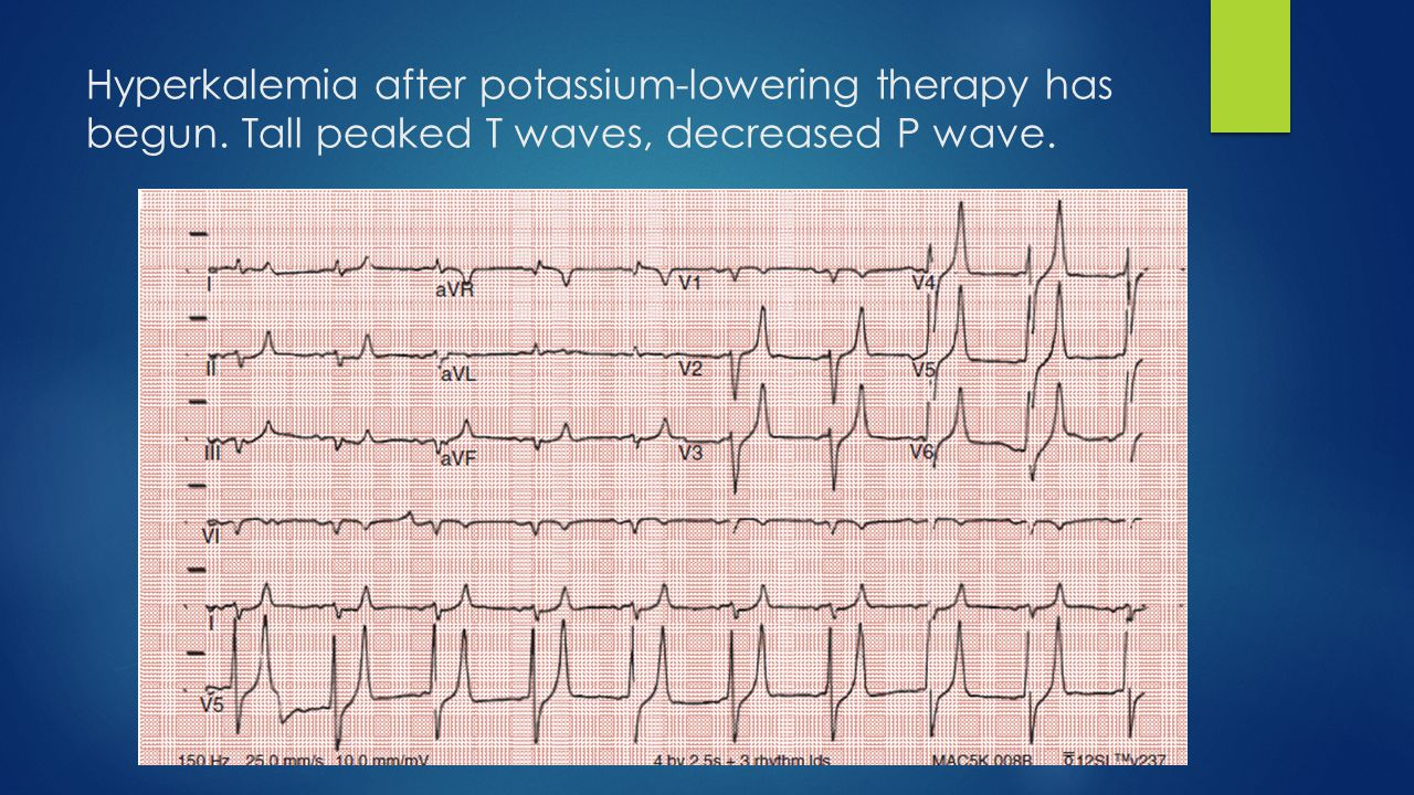 Hyperkalemia after potassium-lowering therapy has begun