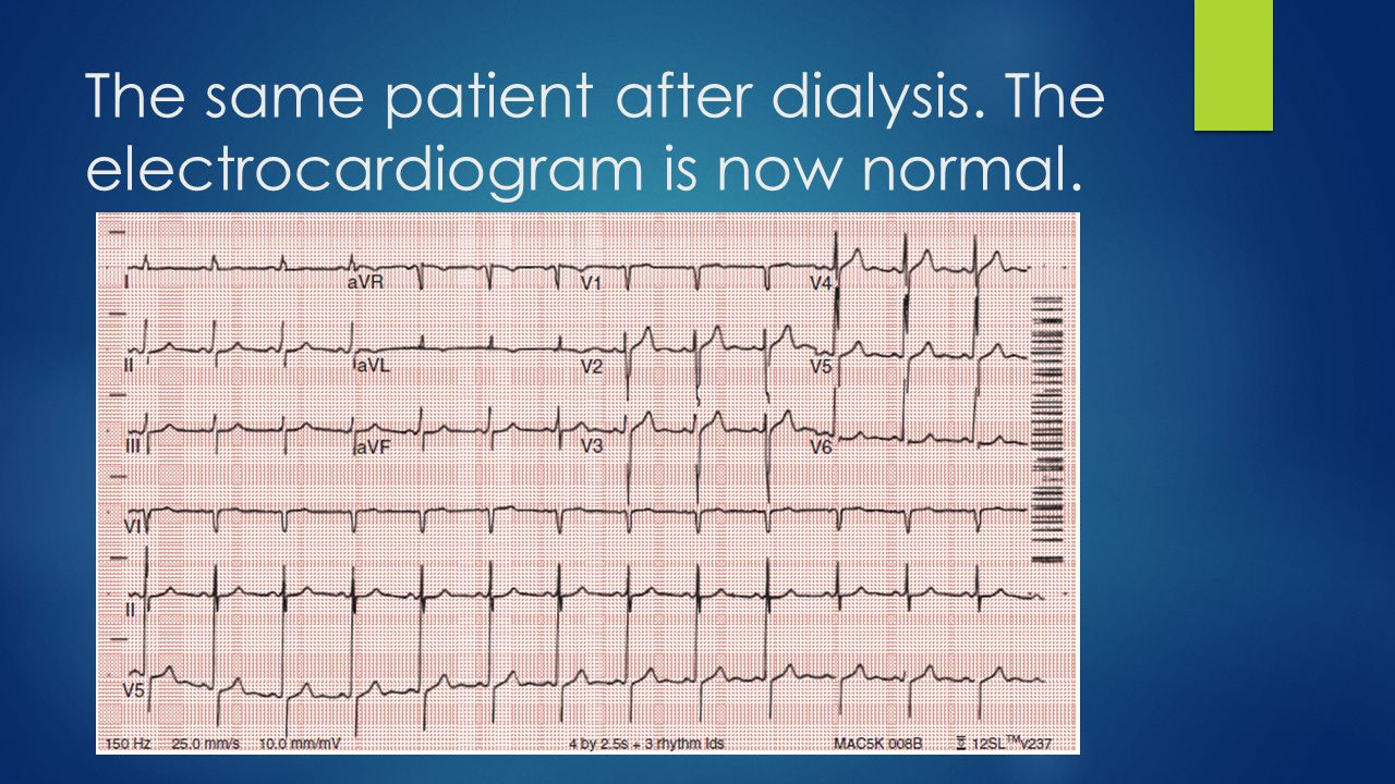 The same patient after dialysis. The electrocardiogram is now normal.
