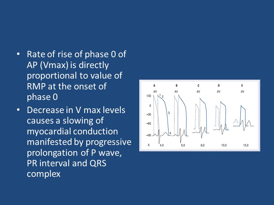 Rate of rise of phase 0 of AP (Vmax) is directly proportional to value of RMP at the onset of phase 0