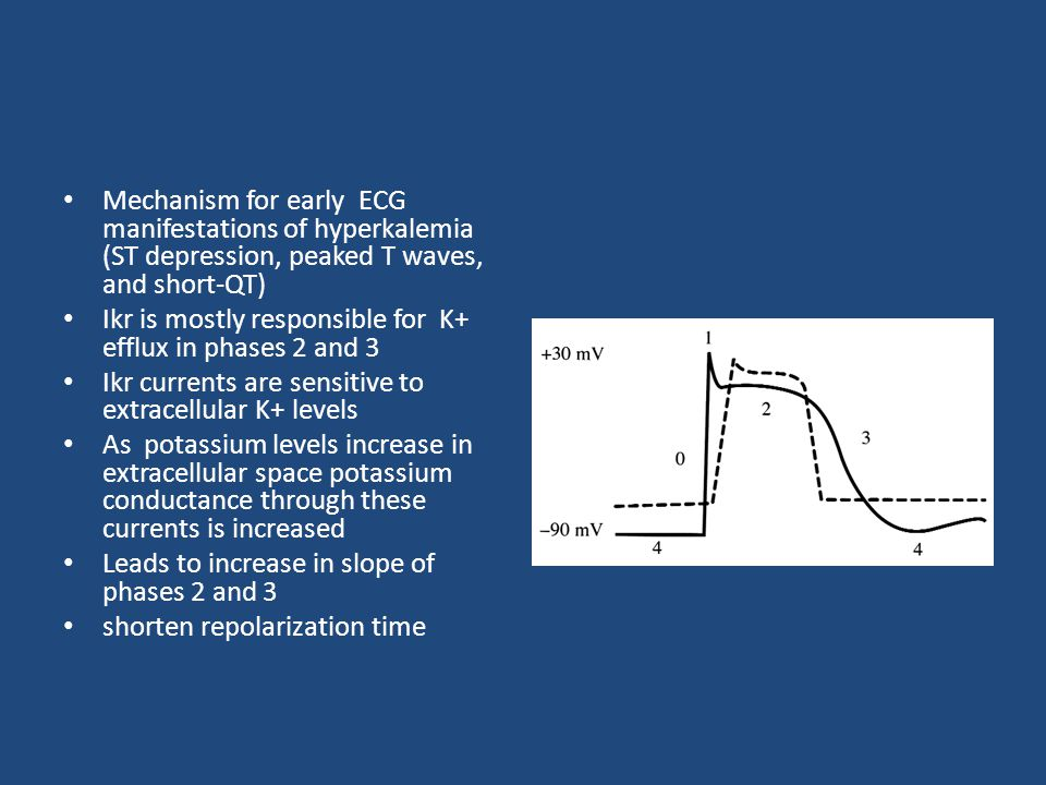 Mechanism for early ECG manifestations of hyperkalemia (ST depression, peaked T waves, and short-QT)