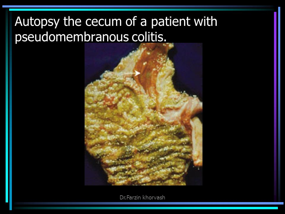 Autopsy the cecum of a patient with pseudomembranous colitis.