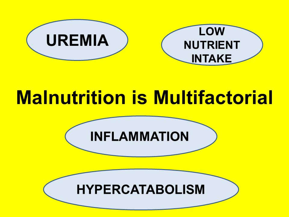 Malnutrition is Multifactorial