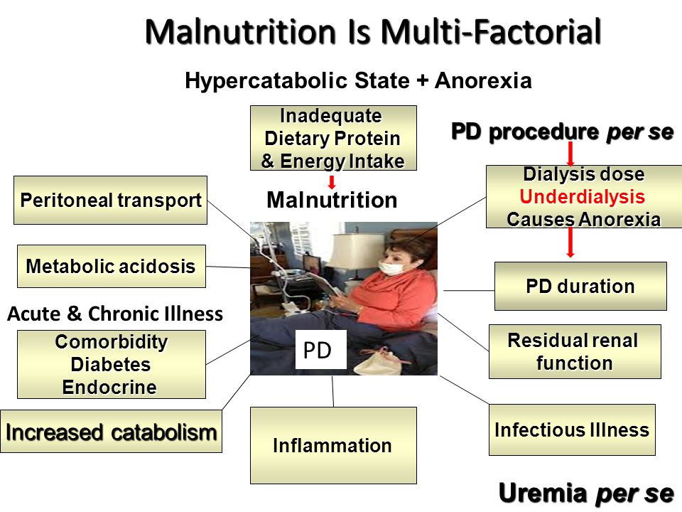 Malnutrition Is Multi-Factorial