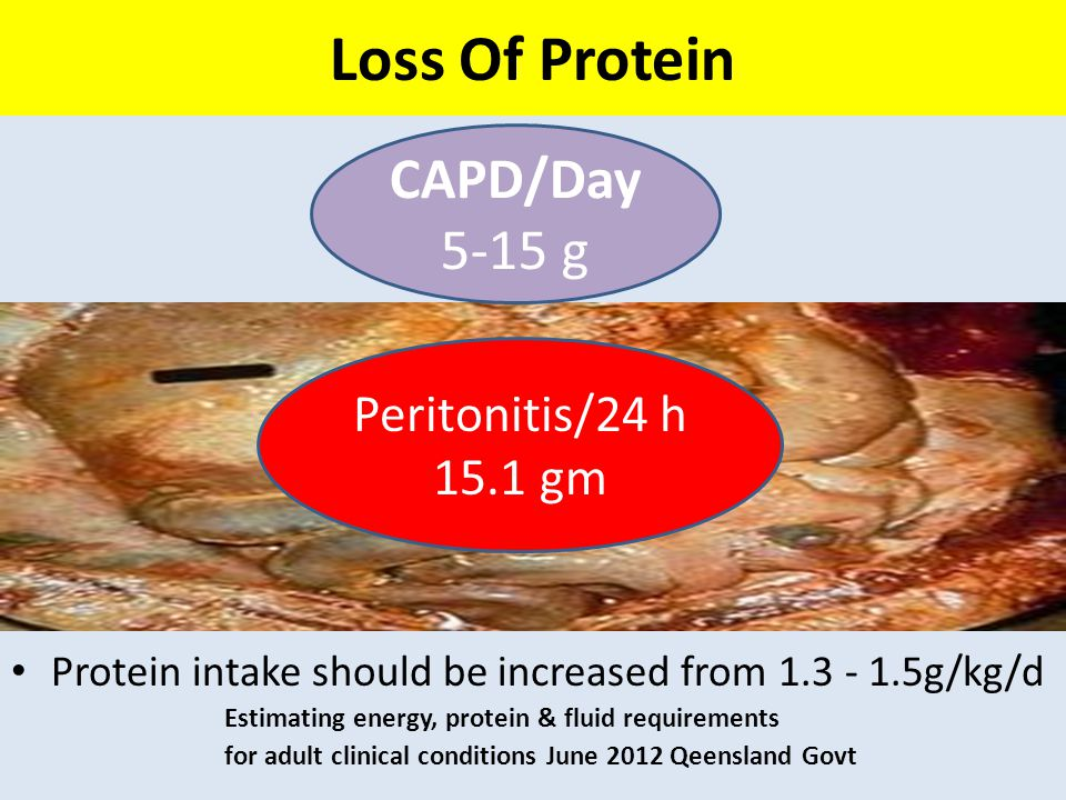 Loss Of Protein CAPD/Day 5-15 g Peritonitis/24 h 15.1 gm