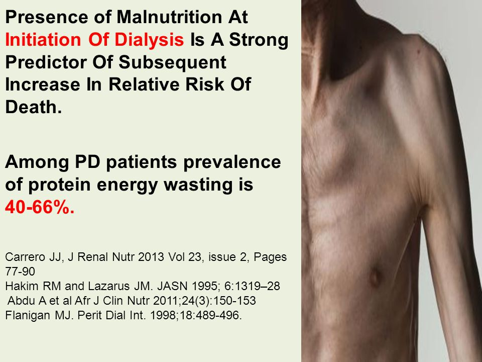 Presence of Malnutrition At Initiation Of Dialysis Is A Strong Predictor Of Subsequent Increase In Relative Risk Of Death.