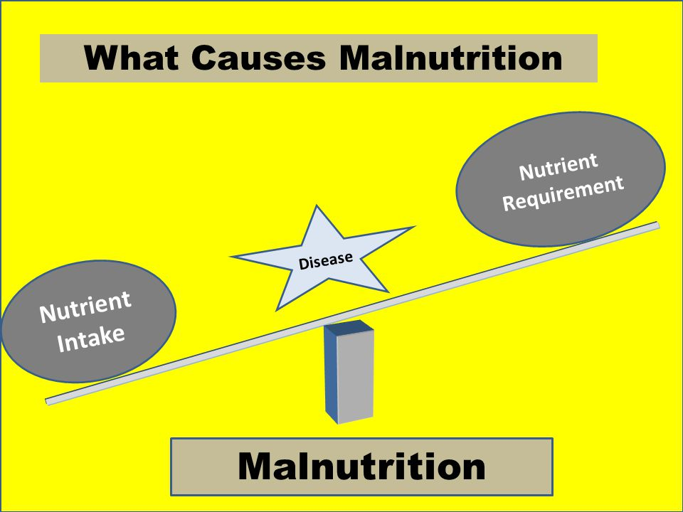 Malnutrition What Causes Malnutrition Nutrient Intake
