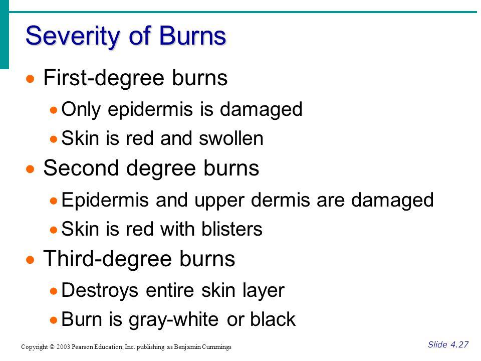 Severity of Burns First-degree burns Second degree burns