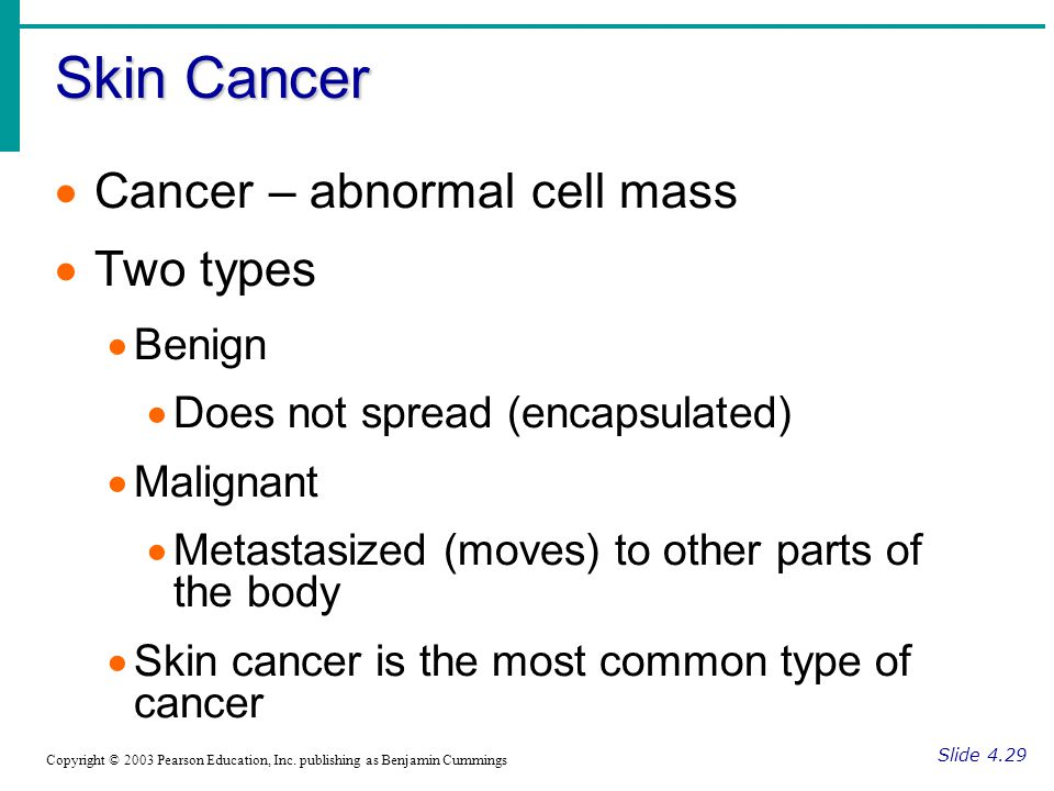 Skin Cancer Cancer – abnormal cell mass Two types Benign