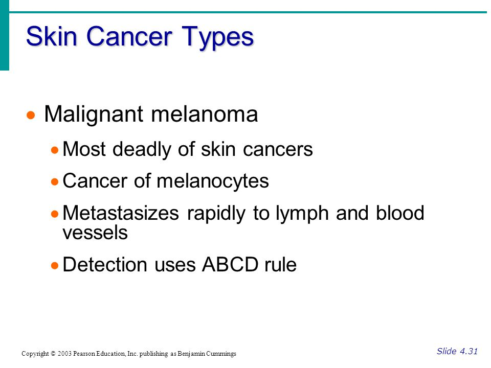 Skin Cancer Types Malignant melanoma Most deadly of skin cancers