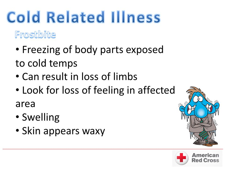Cold Related Illness Frostbite