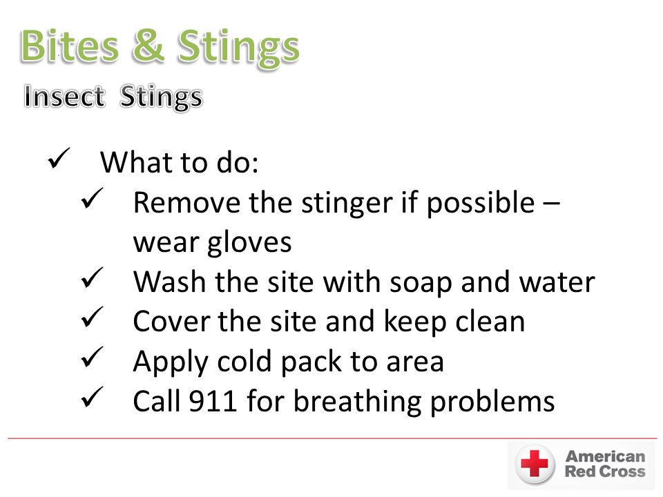 Bites & Stings Insect Stings What to do: