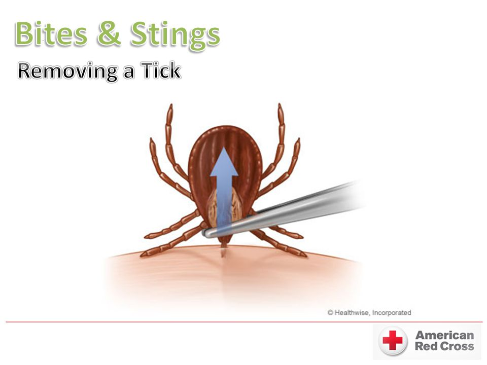 Bites & Stings Removing a Tick